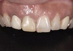 インプラント前歯1本治療前